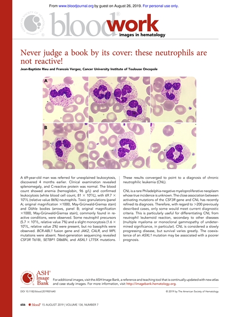 Never judge a book by its cover these neutrophils are not reactive